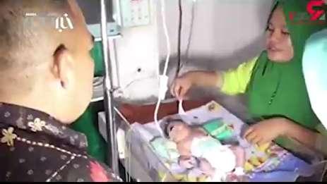 ویدئو/ وحشت پزشکان از تولد نوزاد تک چشم در اندونزی (۱۶+)